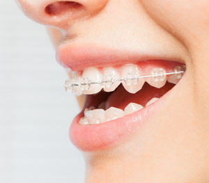 best clear braces saratoga ca