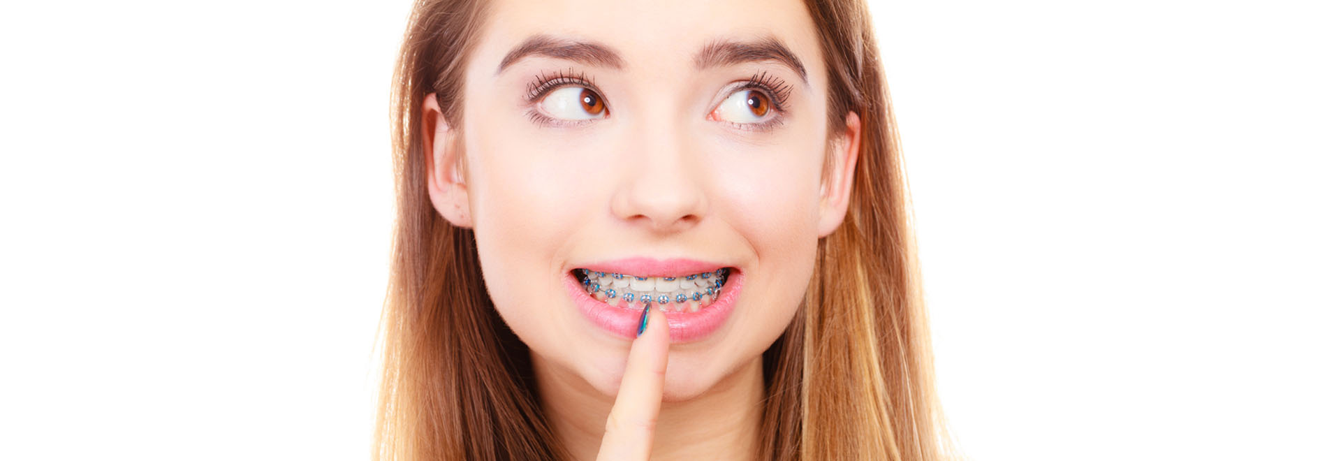 best dental braces saratoga ca