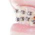 elastic free braces saratoga ca