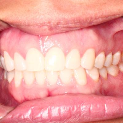 Virtual Smile Assessment Saratoga CA | Nejat Orthodontics