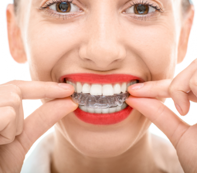 invisalign clear aligners everythign you need to know saratoga ca