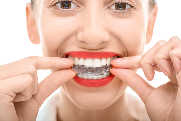Invisalign Clear Aligners – Everything You Need To Know