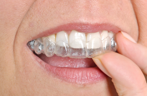 average cost of invisalign
