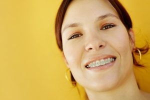 orthodontist west cupertino